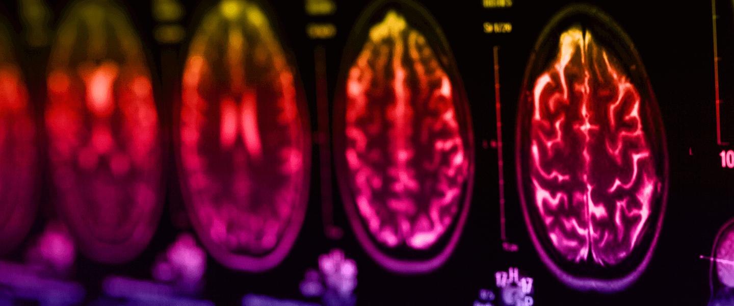 Imaging Study Links Changes in Function and Structure of the Hippocampus in Early Psychosis