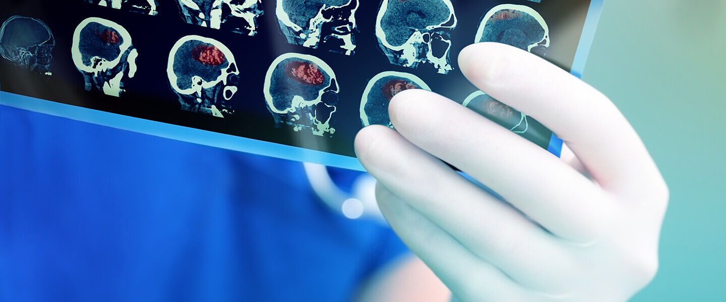Brain Scans Reveal a Possible Biomarker for Suicidal Thoughts in PTSD
